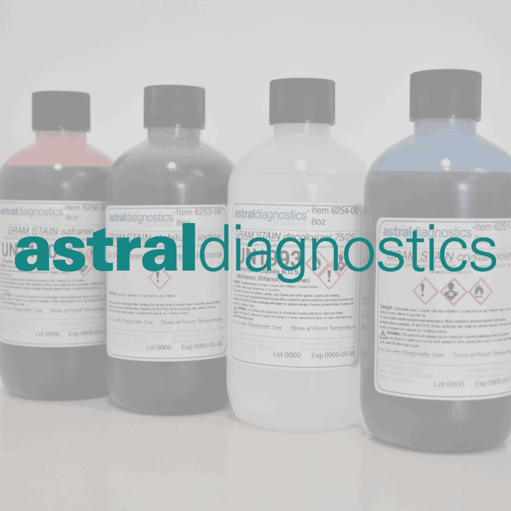 Astral Diagnostics